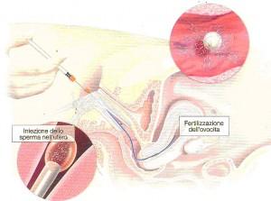 inseminazione intrauterina