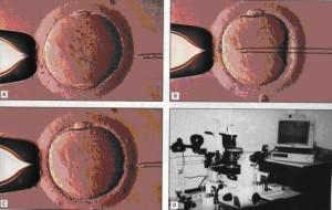 ICSI iniezione intracitoplasmatica dello spermatozoo al micromanipolatore