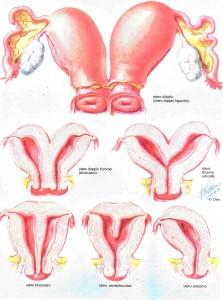 malformazioni uterine