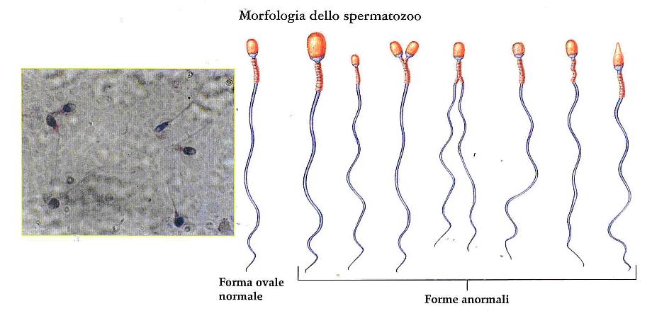 radiazioni prostatiche ed fertilità