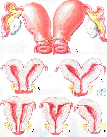 malformazioni uterine: A- utero didelfo B- utero doppio bicorne C- utero bicorne D- utero settato completo E- utero settato parziale F- utero unicorne