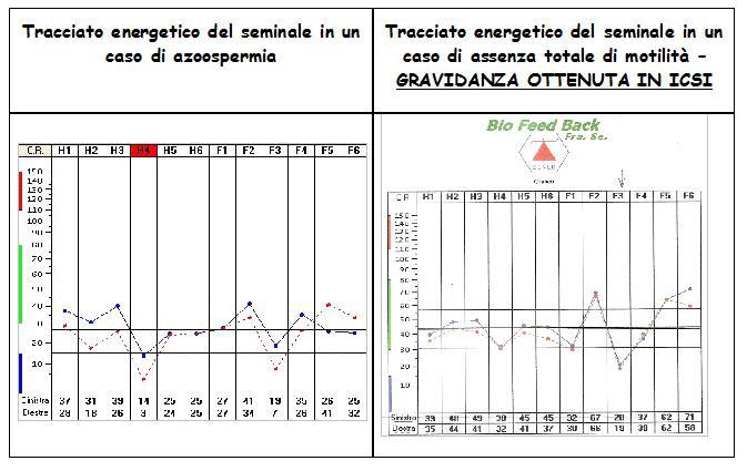 grafico_spermiogramma