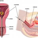SCRATCHING-endometrio-img1