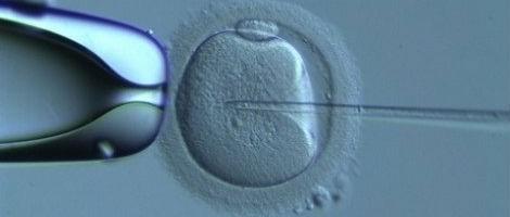 Microiniezione degli ovociti donati con spermatozoi del partner.