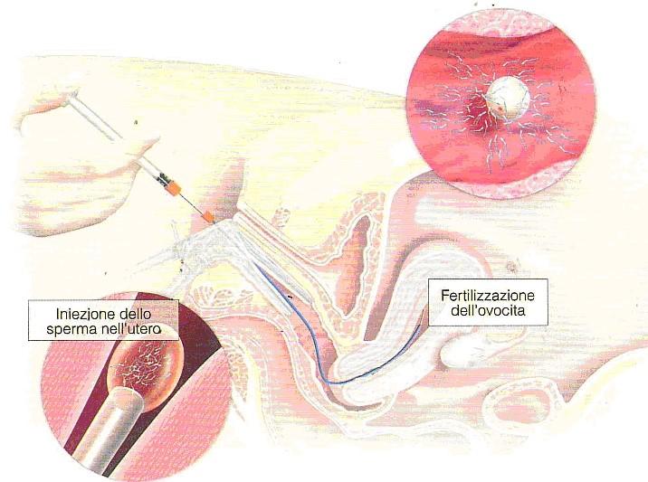 Fecondazione eterologa: Inseminazione intrauterina con seme di donatore