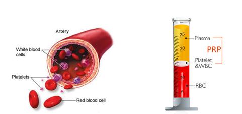 Cellule del sangue: globuli rossi, globuli bianchi e piastrine PRP ottenuto dopo centrifugazione