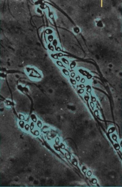 Spermatozoi lungo le tube
