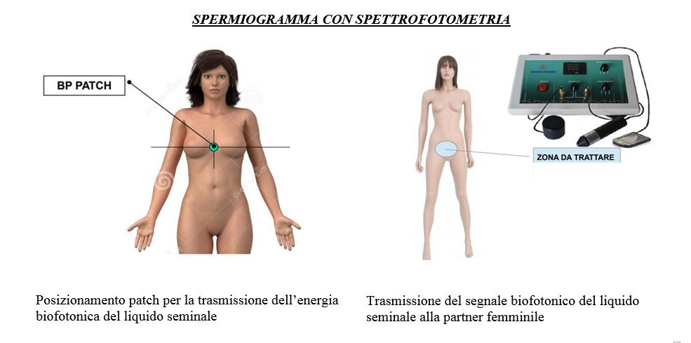 Spermiogramma con spettrofotometria